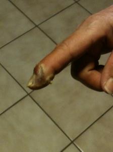Mom finger 003